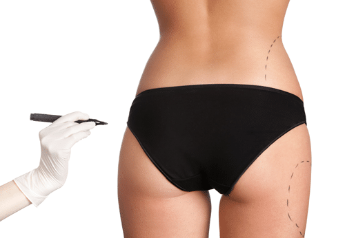 Smartlipo, Cool Lipo, Water Jet Lipo,Lip filler, Smartlipo, Cool Lipo, and Water Jet Lipo, liposuction, Body Wraps, Pittsburgh Medical Mall, medical providers network, medical providers, medical care providers network, medical supplies, deals, medical offers near me